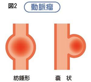 動脈図2-thumb-300x272-2130.jpg