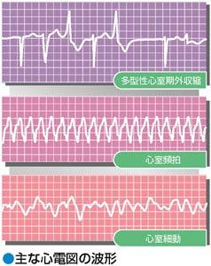 主な心電図の波形