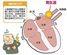 デバイス治療に関するガイドライン – 日本不整脈心 …