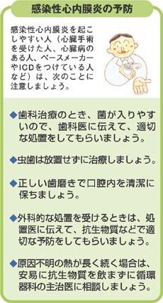 感染性心内膜炎の予防−一覧図
