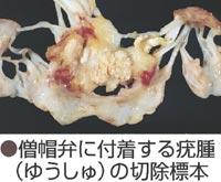 僧帽弁に付着する疣腫の切除標本写真