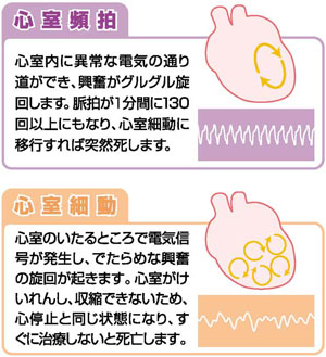 心室頻拍と心室細動の説明図