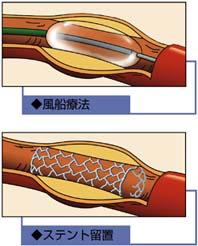 風染療法とステント留置