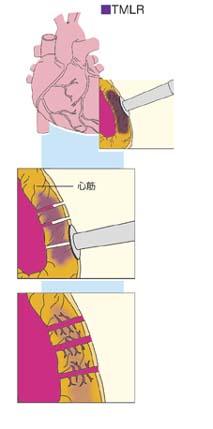 TMLR(レーザー心筋内血管形成術)・図解