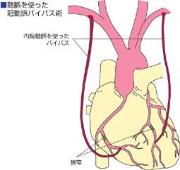 動脈を使った冠動脈バイパス術・図解