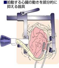 拍動する心臓の動きを部分的に抑える器具・図解