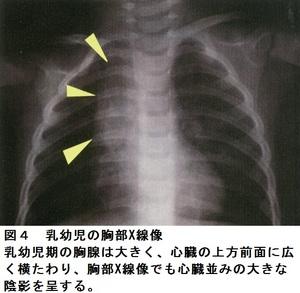 41図4.jpg