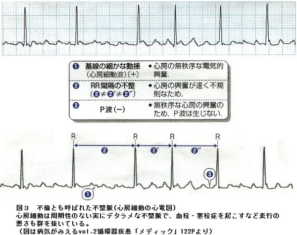 43図3.jpg
