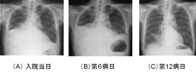 肺 に 水 が 溜まる 症状 胸水 健康長寿ネット