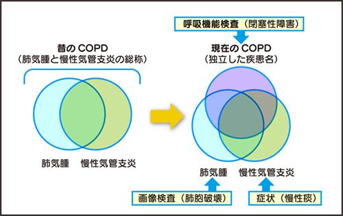 永田図COPD.jpg
