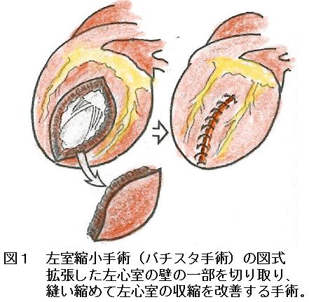 20回バチスタ手術  図1.png