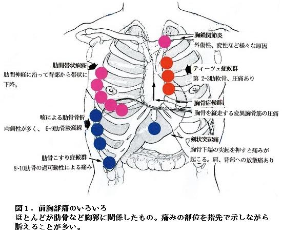 痛い が みぞおち あたり みぞおちが痛い:医師が考える原因と対処法|症状辞典