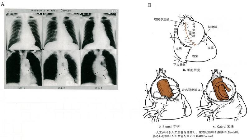 110大動脈弁輪拡張症65共有.jpg