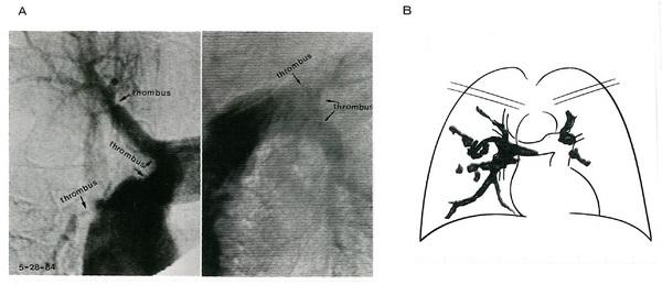 140肺動脈血栓症2.jpg