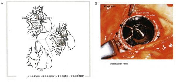 167弁置換術A赤(図E-8).jpg