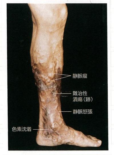 20下肢静脈瘤.jpg