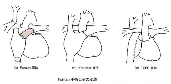 73心外導管型手術黄(図6-32).jpgのサムネイル画像