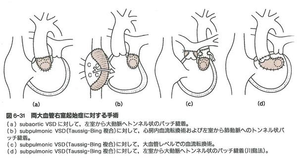 91心内導管型手術青(図6-31).jpg
