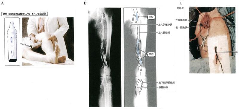 95深部静脈血栓症緑(248P~249P).jpg