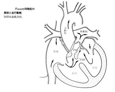 152ファロー四徴症正.jpg