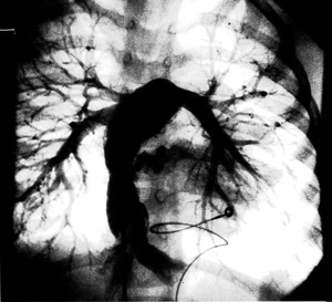 153フォンタン手術写真.jpgのサムネイル画像