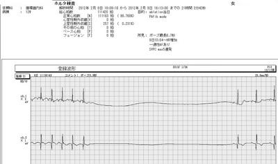 72徐脈頻脈症候群.jpg