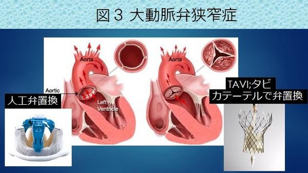 外科治療図3.jpg
