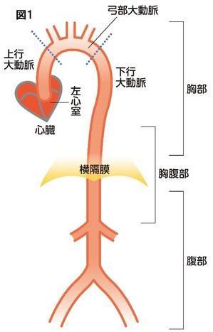 血管の病気を知ろう(1)動脈疾患 動脈・静脈疾患(動脈瘤、静脈瘤 ...