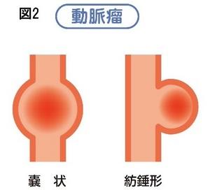 動脈図2.jpgのサムネイル画像