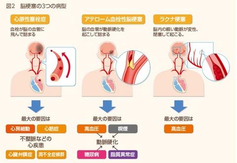 脳卒中図2.jpg