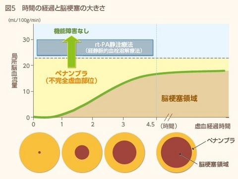 脳卒中図5.jpg