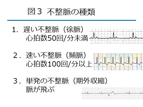不整脈図3.jpg