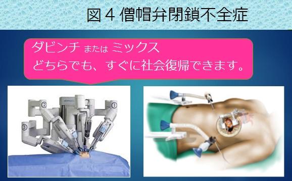 外科治療図4.jpg